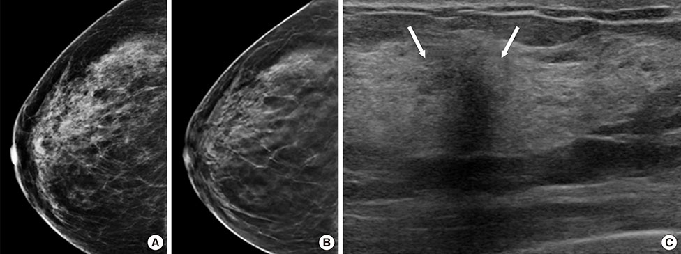 Addition of Digital Breast Tomosynthesis to Full-Field Digital